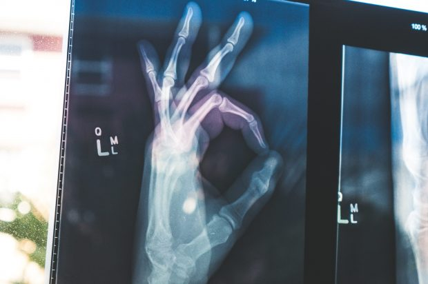 x-ray image of hand with thumb and fingers forming OK sign